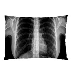 X Ray Pillow Case by Valentinaart