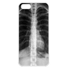 X Ray Apple Iphone 5 Seamless Case (white) by Valentinaart