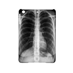 X Ray Ipad Mini 2 Hardshell Cases by Valentinaart