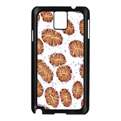 Formalin Paraffin Human Stomach Stained Bacteria Brown Samsung Galaxy Note 3 N9005 Case (black) by Mariart