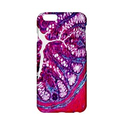Histology Inc Histo Logistics Incorporated Masson s Trichrome Three Colour Staining Apple Iphone 6/6s Hardshell Case by Mariart