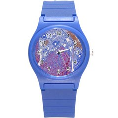 Histology Inc Histo Logistics Incorporated Human Liver Rhodanine Stain Copper Round Plastic Sport Watch (s) by Mariart